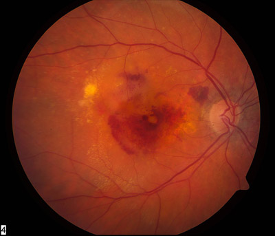 alt mce_tsrc=images/stories/wet_macular_fundus.jpg